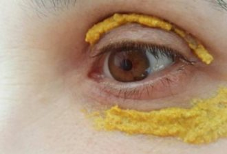 she-put-turmeric-around-the-eyes-10-minutes-later-something-incredible-happened