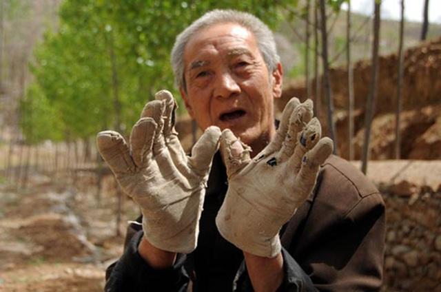 70-летний безногий ветеран посадил за 19 лет 17 000 деревьев