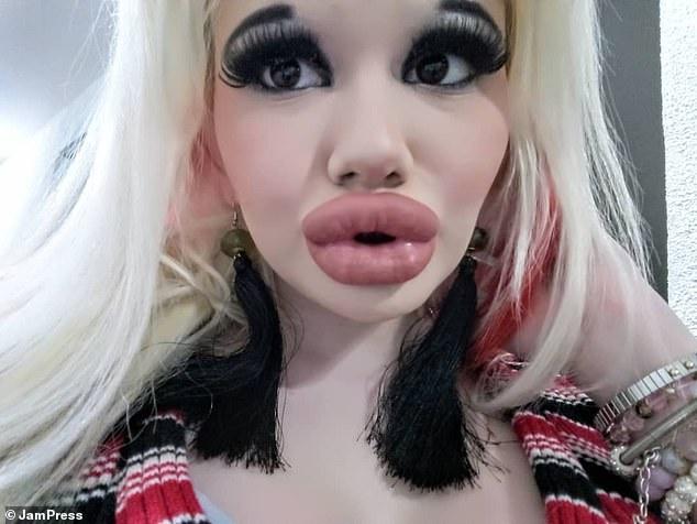 Девушка втрое увеличила губы, но ей все мало